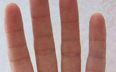 Fingers – Extra Creases on Phalanges